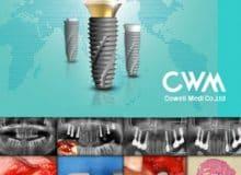 implanty 1 1 220x160